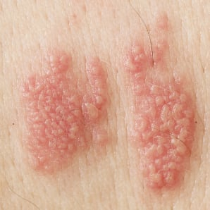 Pictures of male genital herpes in the early stages