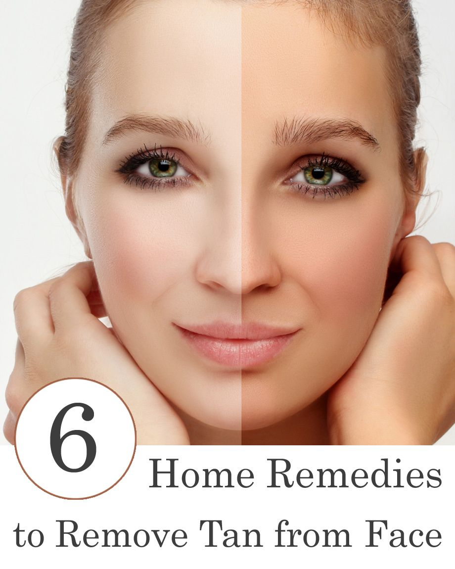Remedies for sun tan on face